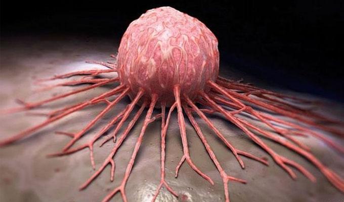 علاقة زيت القلي المتكرر وانتشار سرطان الثدي